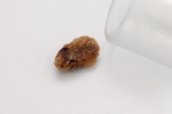 Kidney Stones In Cats From Food